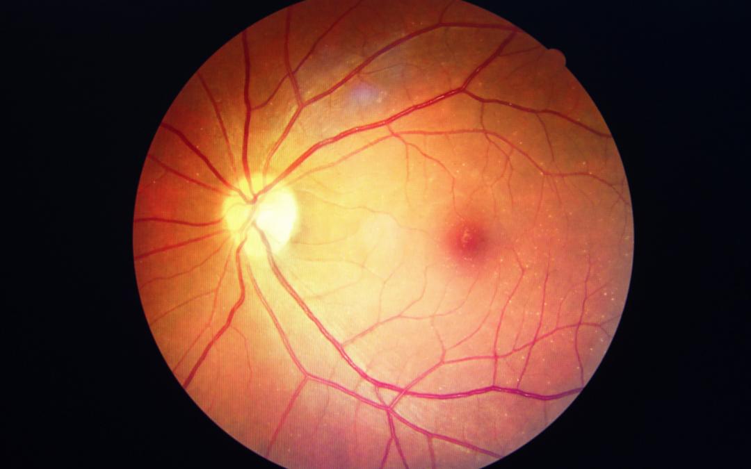 Macular Hole – Vitrectomy