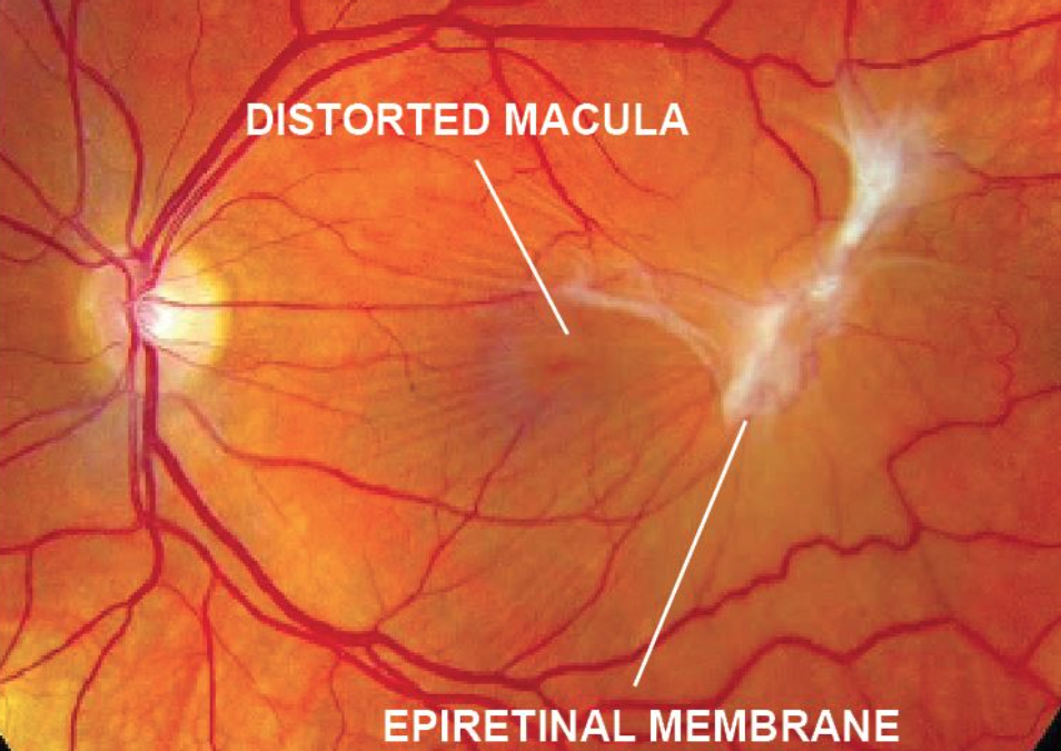 Epiretinal Membrane and Macular Pucker
